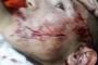 صور صادمة للاعتداء الذي تعرض له لاعب منتخب الفتيان
