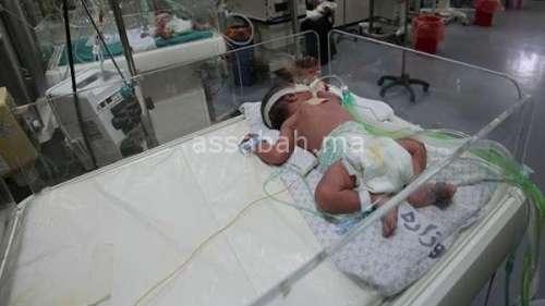 ارتفاع وفيات الأطفال بالقرى